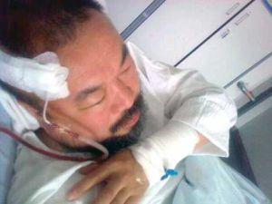 Ai Weiwei after surgery